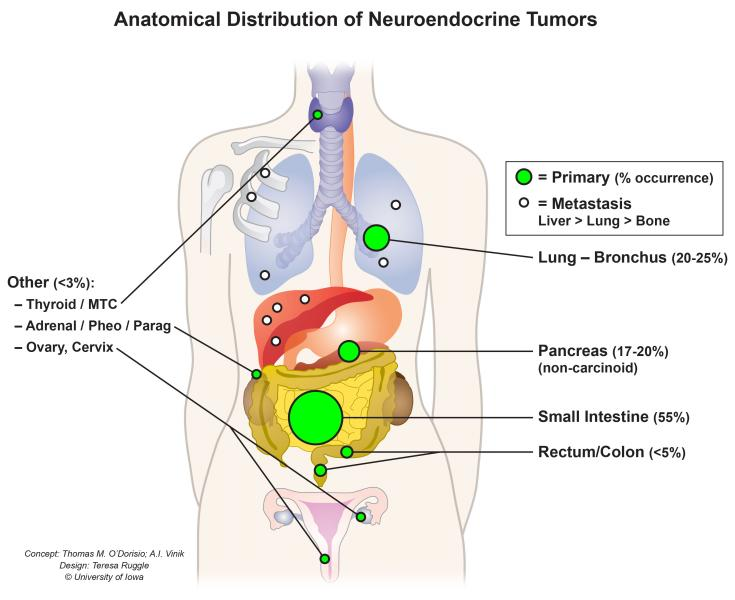 Neuroendocrine Cancer