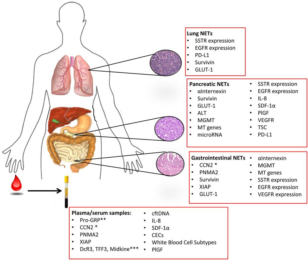 neuroendocrine cancer cure ce este condilomul și papilomul